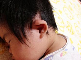 ダウン症の特徴に新生児の時の耳の形が関係!? 赤ちゃん